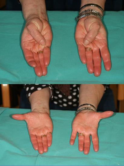 b127845f65d Tratamiento y solución quirúrgica a la artrosis en las manos: dolor ...