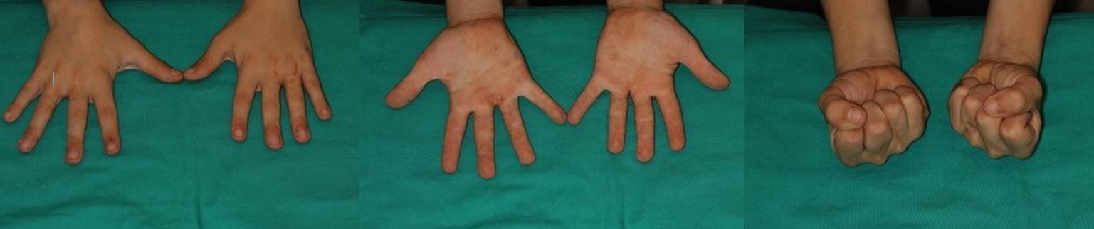 Malformaciones de la mano congénitas: sindactilia, polidactilia
