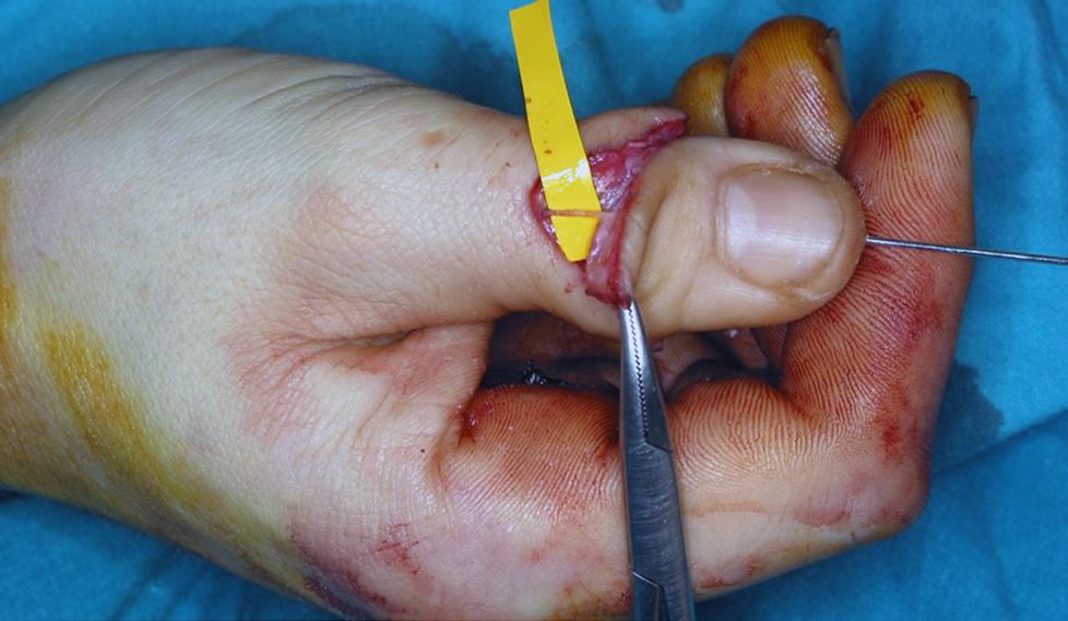 Cirugía de la mano, reimplante de dedos amputados. Finger replantation.