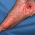 osteomielitis calcaneo_1_201505