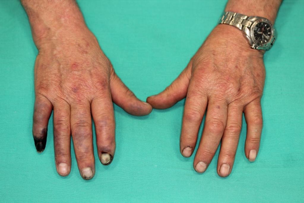 Gangrena Seca Tratamiento de isquemia aguda de la mano mediante bypass ...