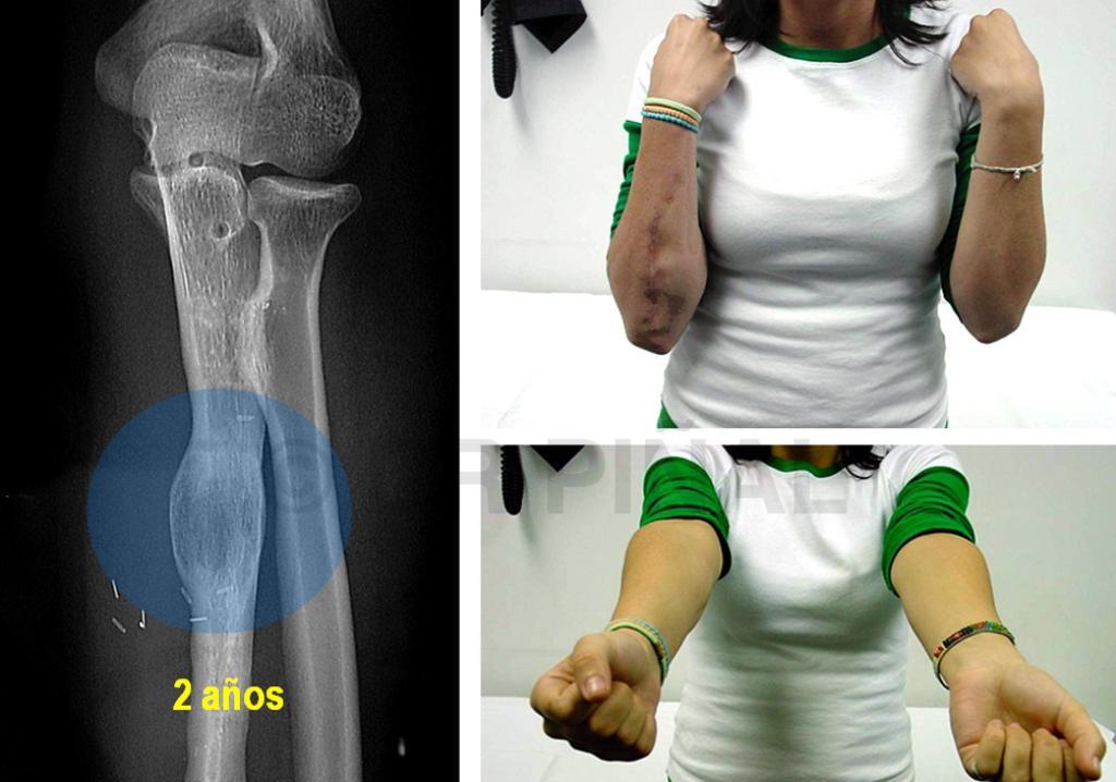 No uniones y pseudoartrosis huesos largos, miembro superior