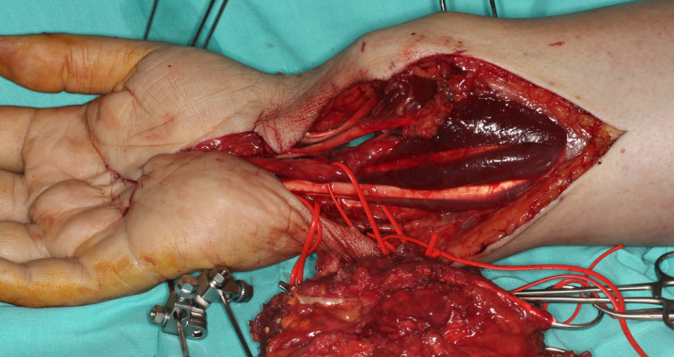 Tumor Resection And Functional Restoration In Hand And Wrist Dr