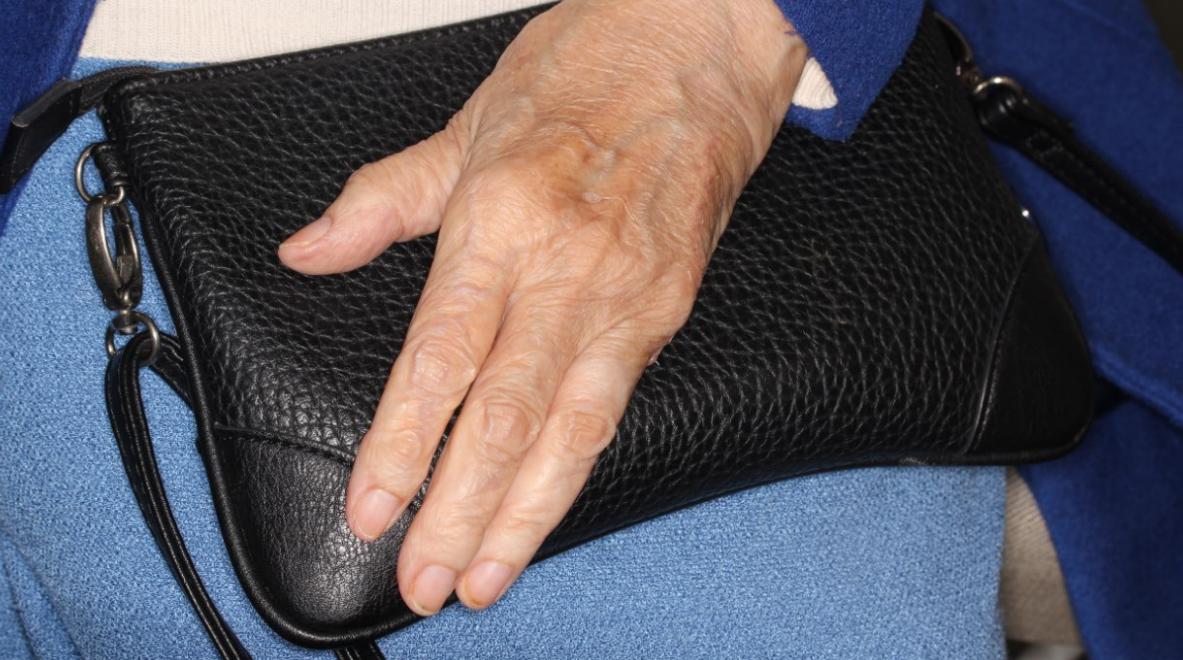 Reconstrucción anatómica de mano tras resección en quinto dedo