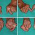 Artritis_inserción prótesis_201706_02