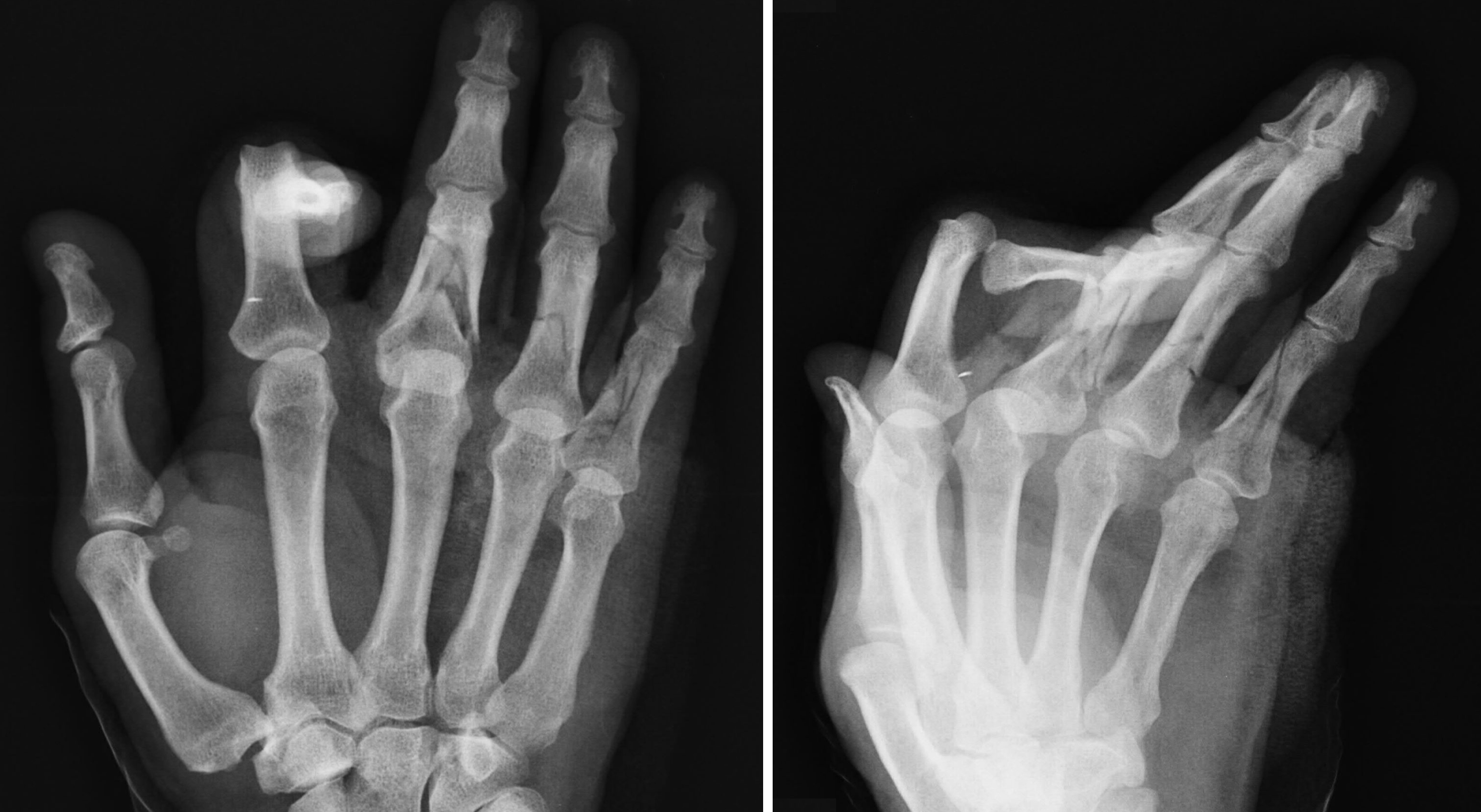 Multifragmentary Finger Fractures Resolution Through Insertion Of