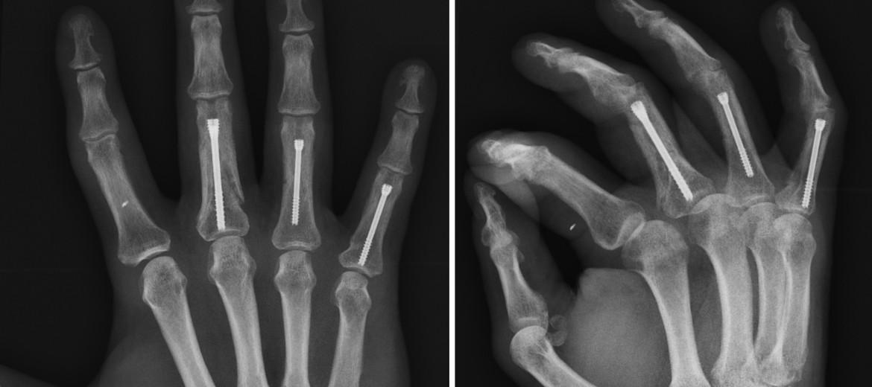 Fracturas de dedos: resolución a partir de tornillos canulados
