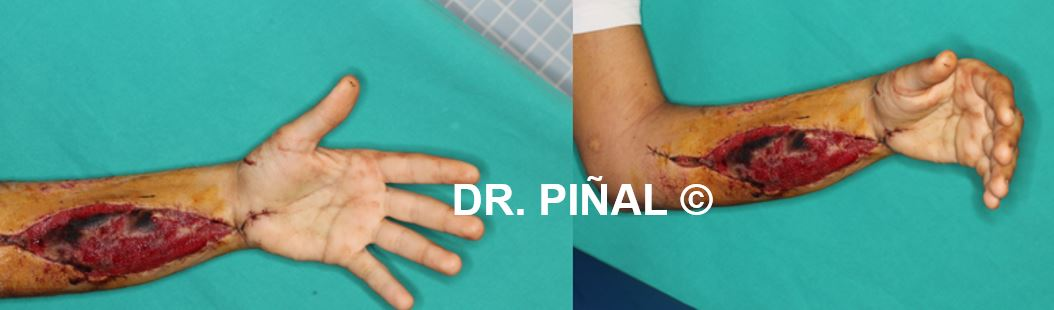 Transfer of gracilis muscle to the forearm after accident