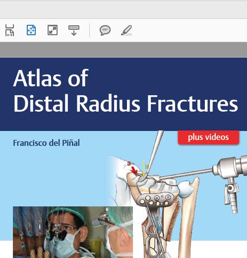 Atlas of distal radius fractures_lanzamiento_01_01_20180606