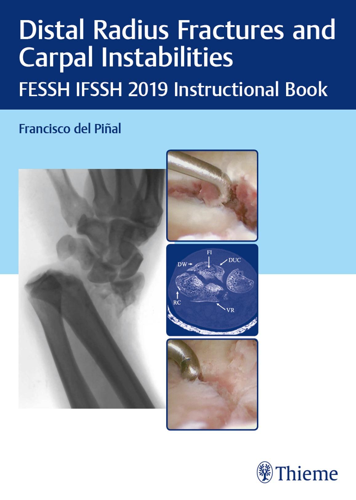 Distal radius fractures and carpal instabilities_01_20190718