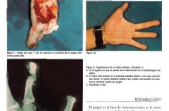Replantation of the thumb