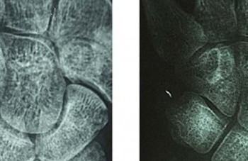 Secuelas de la fractura de colles