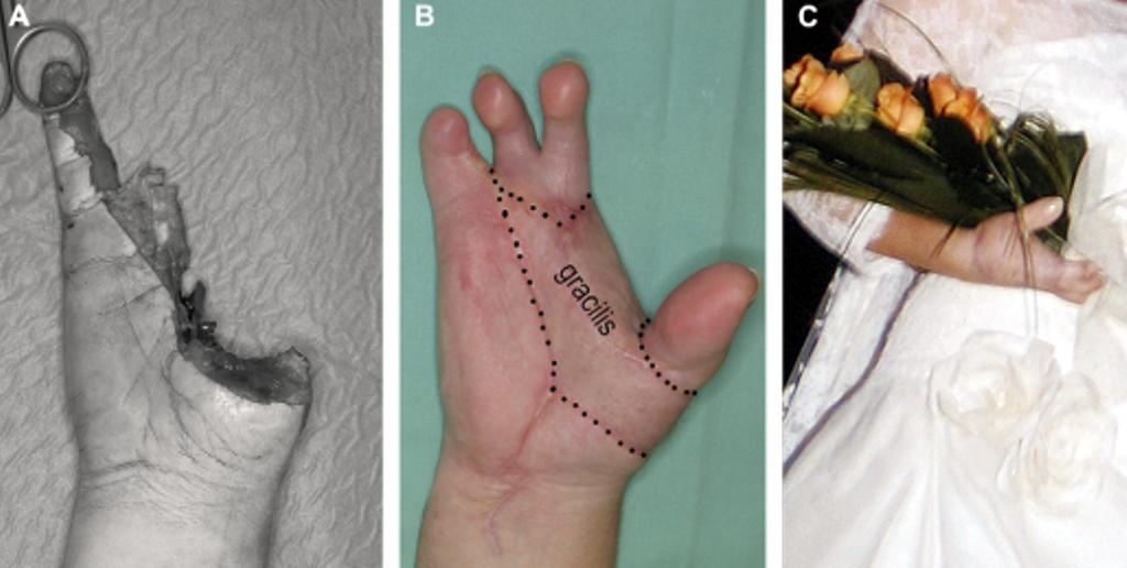 caso clínico mano mutilada