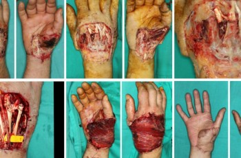 Proceso reconstrucción quirúrgica