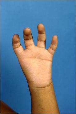 Thumb_hypoplasia_type_5