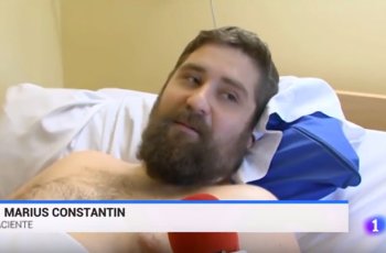 """Marius Constantin, 28 years old (Zalla, Vizcaya, Spain), loss of the five fingers of his right hand l due to the explosion of a high-powered firecracker: """"The intervention of Dr. Piñal gives me the freedom to fend for myself"""""""
