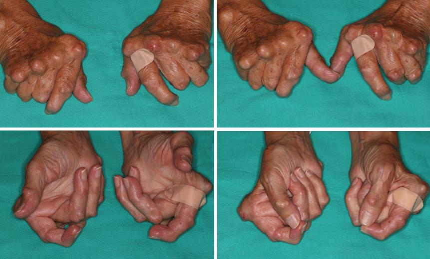 Hand Rheumatoid Arthritis Surgery And Prosthesis Insertion