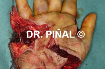 Aplastamiento mano lesión nerviosa y extrusión_03_20171108