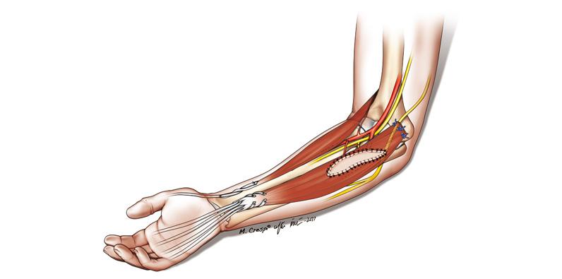 lesiones-nerviosas