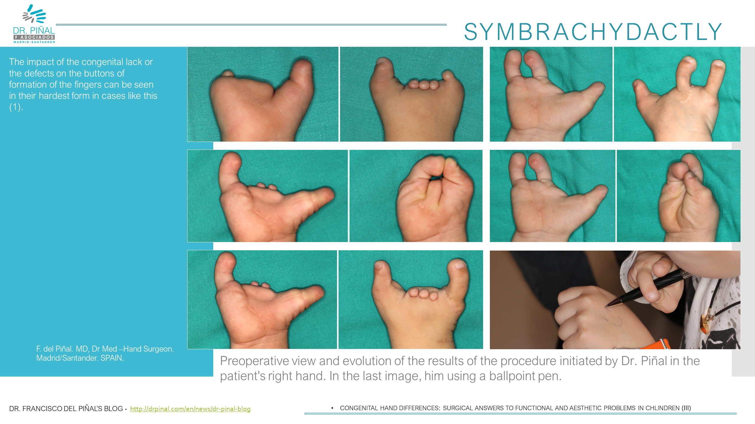 Congenital Differences In The Hand Approach Through Microsurgery