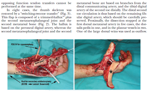 2019_Extreme Thumb Losses Reconstructive Strategies_01_20191106