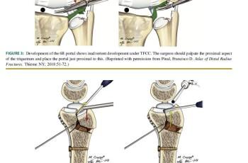 Dry wrist arthroscopy radial sided wrist disorders_01_20201223