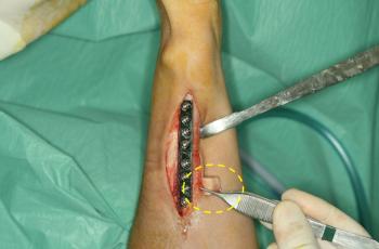 Cirugía de rescate en fractura de radio_01_20210610