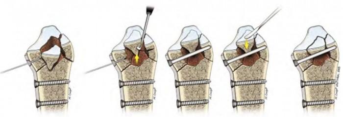 Manejo de fragmentos osteocondrales en fractura de radio distal